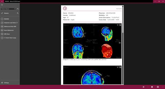 Athena DICOM Viewer for Windows 10 PC Free Download - Best Windows