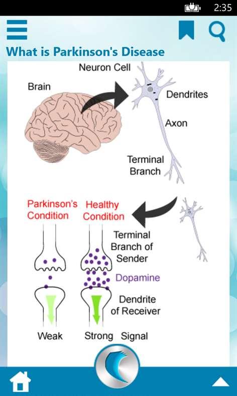 parkinsons answers parkinsons disease - 472×787